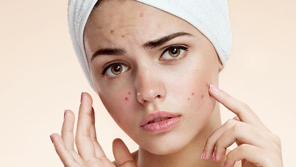 Aceite de caléndula para el acné