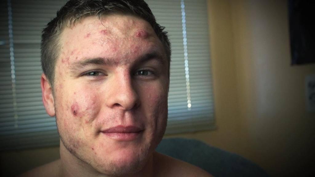 Es bueno contra el acné, ¿cómo se usa?
