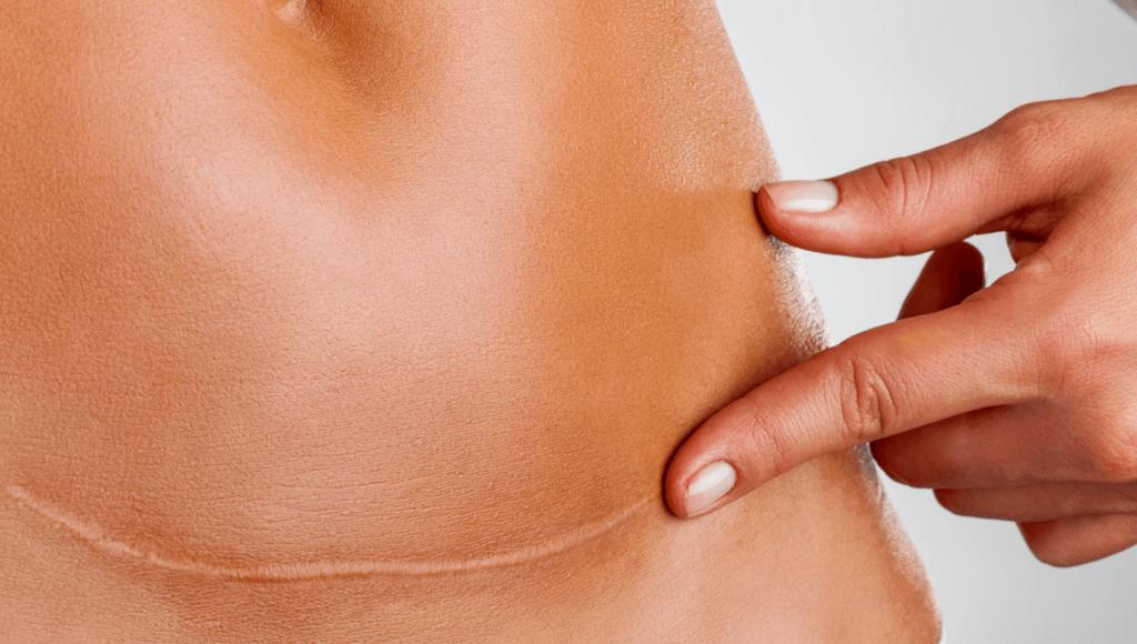¿Cómo se usa el aceite de hipérico para las cicatrices?