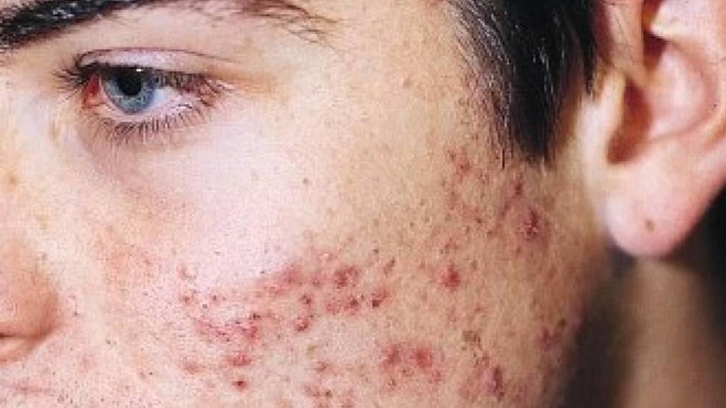 Usos del aceite de jojoba contra el acné
