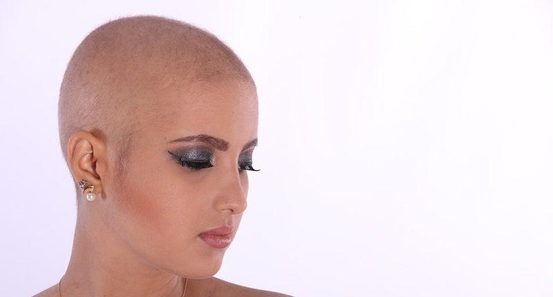 Mujer sin pelo por caída del cabello