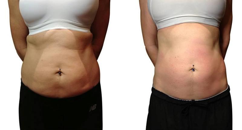 Drenaje linfático en abdomen: Antes y Después
