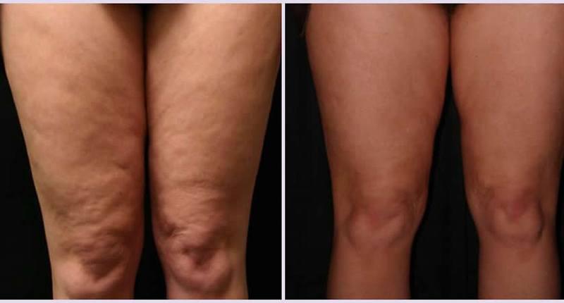 Antes y después de un drenaje linfático piernas