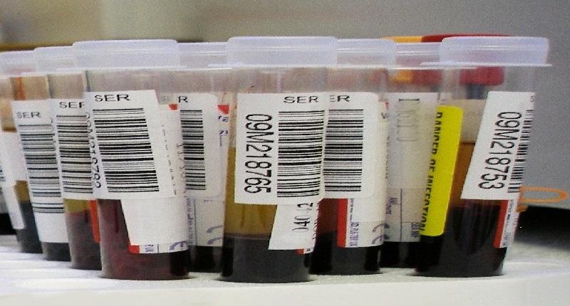 la importancia del Triple Screening en la traslucencia nucal