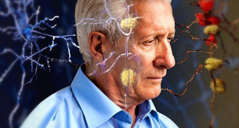 aceite de coco en ayunas - Alzheimer
