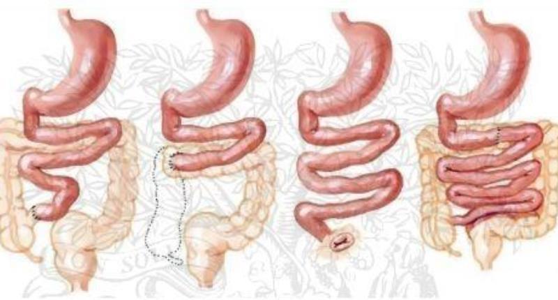 enfermedad de crohn en niños - sindrome del intestino corto