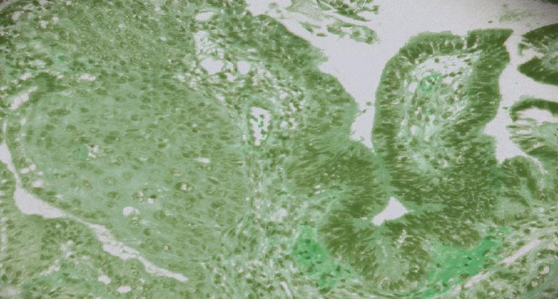 es común el flujo verdoso en el embarazo