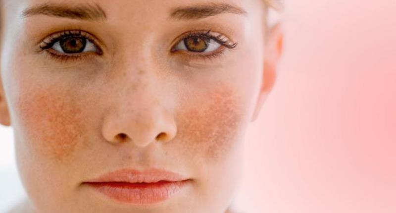 En caso de omitir una dosis de Ácido kójico ¿Qué sucede en nuestra piel u organismo?
