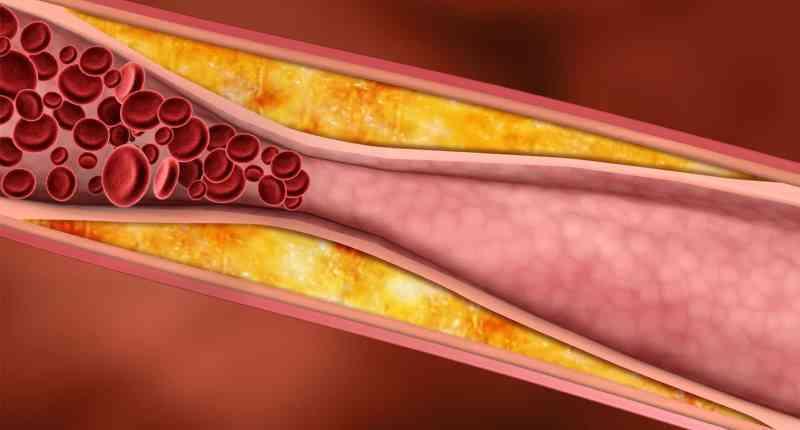 bardana para controlar los niveles de colesterol