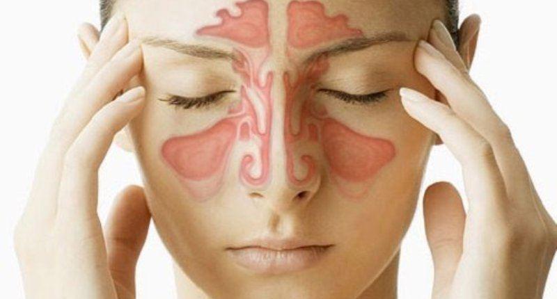 Uso del boldo para infecciones o congestiones nasales