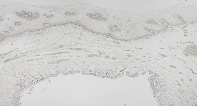 cómo se relaciona el flujo transparente con la ovulación