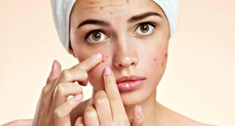 jengibre para combatir el acne