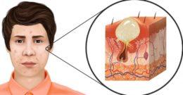 ¿Qué es el acné? Todos los tipos y por qué salen.