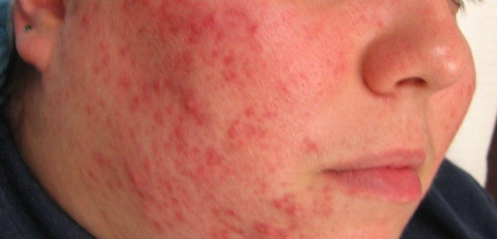 Áreas del cuerpo donde puede aparecer el acné comedónico