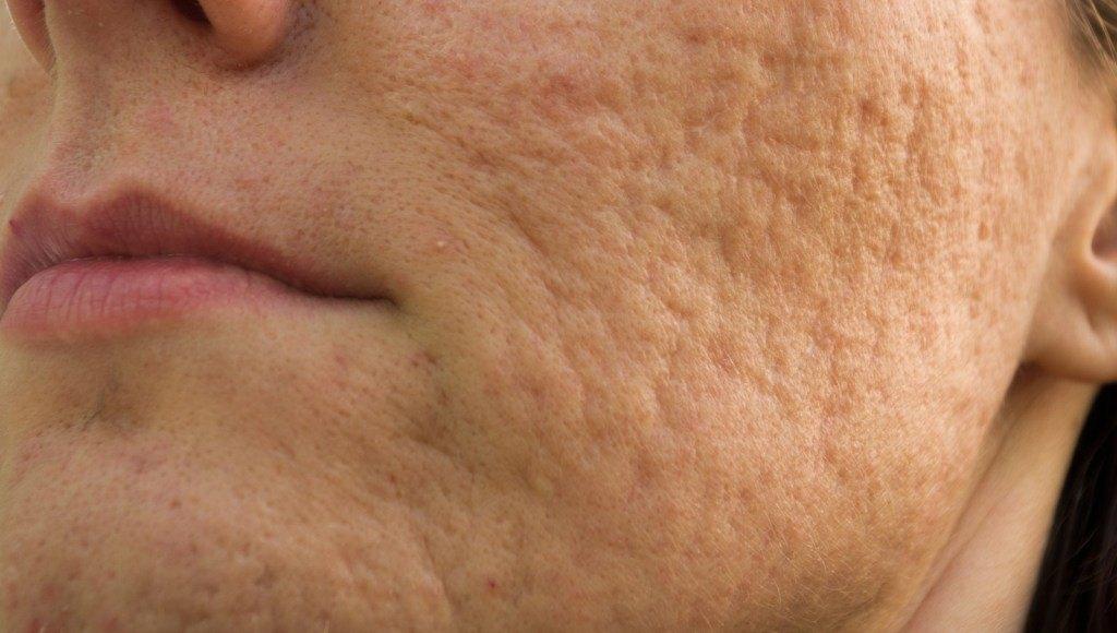 Patologías del acné cosmético