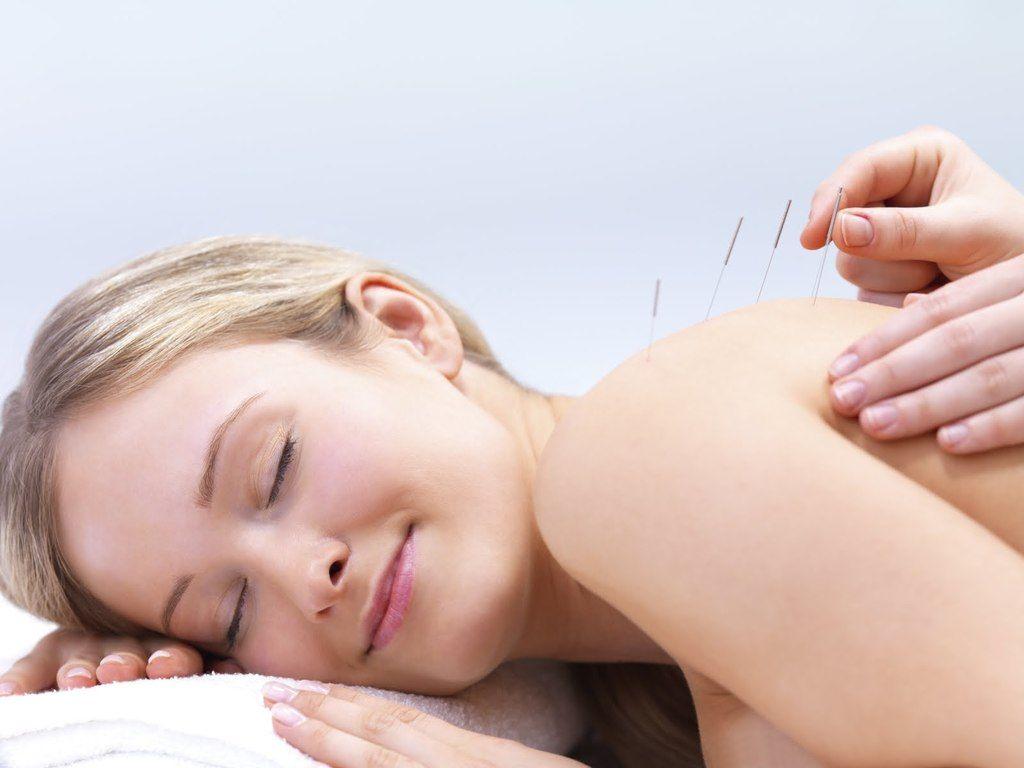 Tratamiento natural para aliviar acné cosmético