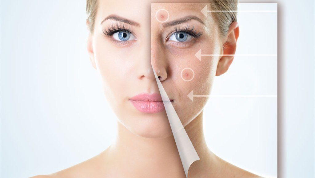 Características del acné cosmético