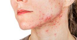 Acné Quístico o Nodular: Causas, Síntomas y Mejores Tratamientos para cada tipo