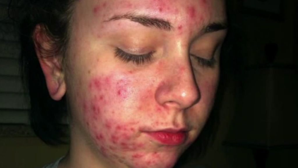 Las mujeres y el acne quistico