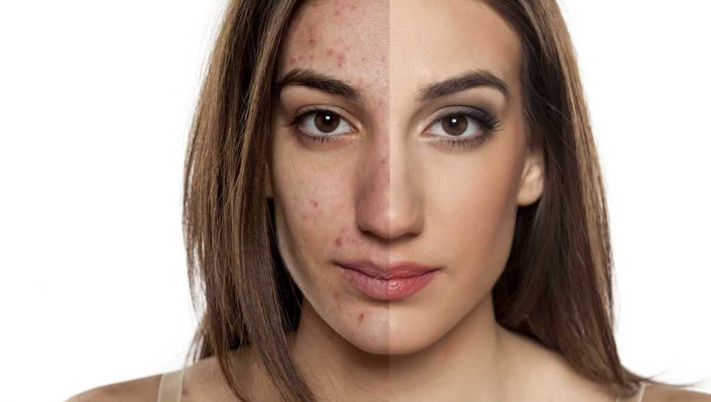 Causas del acné seborreico