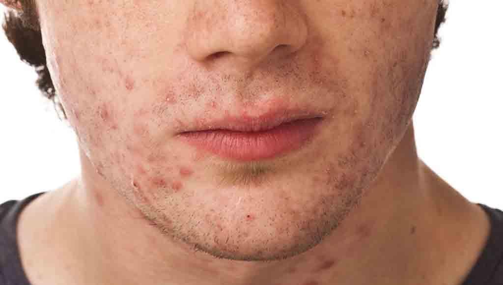 Los hombres ¿sufren de acné seborreico?