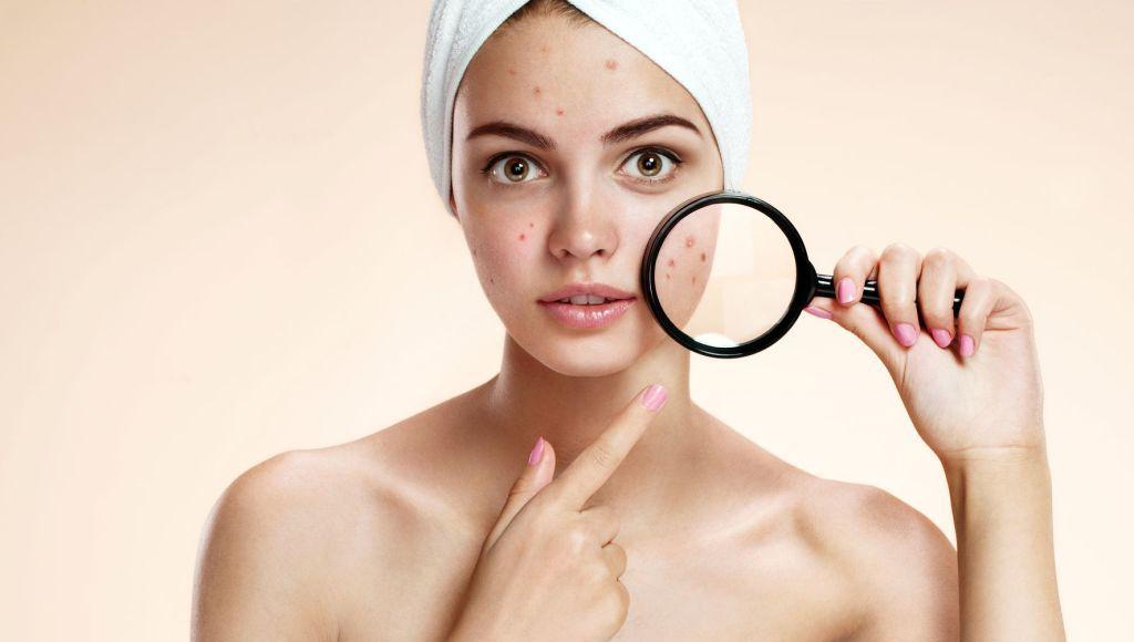 Áreas del cuerpo donde puede aparecer el acné seborreico