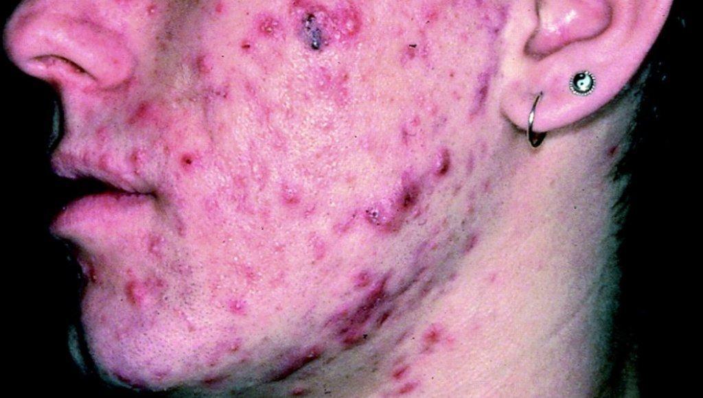 Causas del acné severo