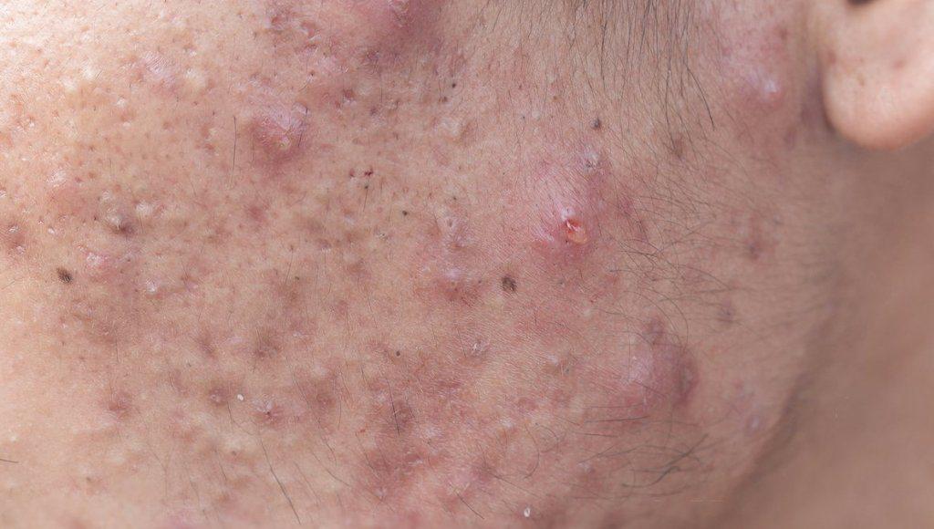 Áreas del cuerpo donde puede aparecer el acné severo