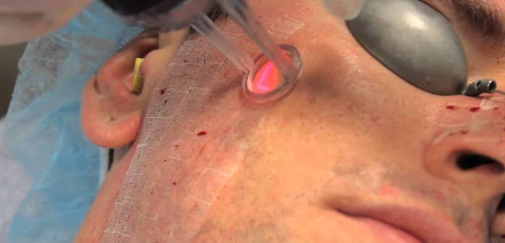 Cirugía con láser
