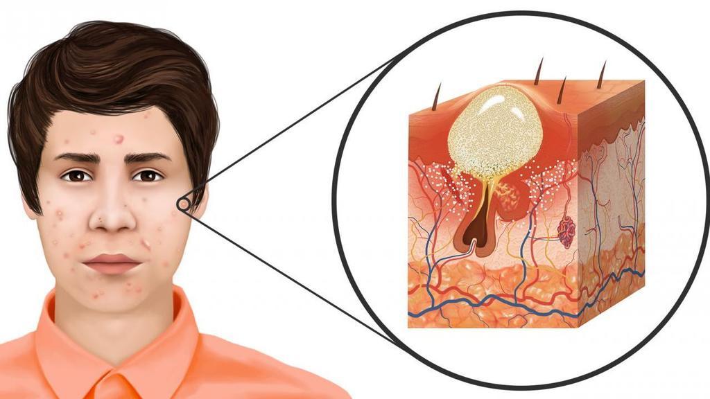 ¿Que es el acne?