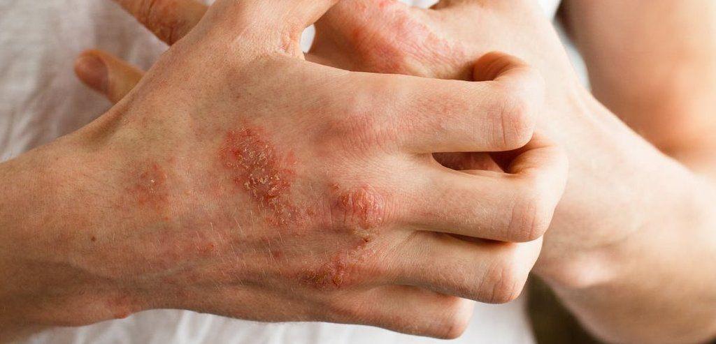 Benficios para la piel aceite clavo