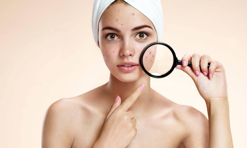 Arrugas acne azahar