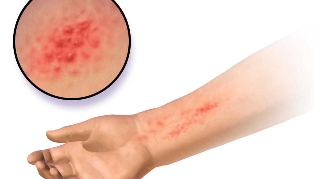 Beneficios piel cara aceite cedro
