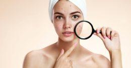 Mejores tratamientos para el acné