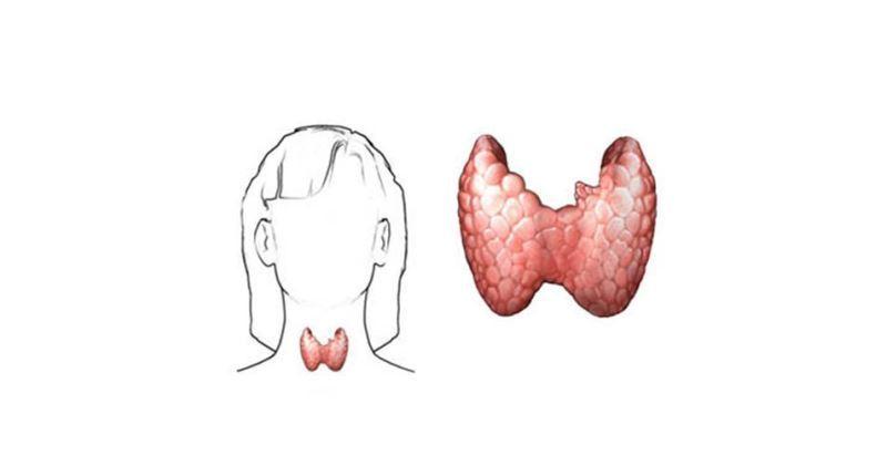 celiaquia y tiroides