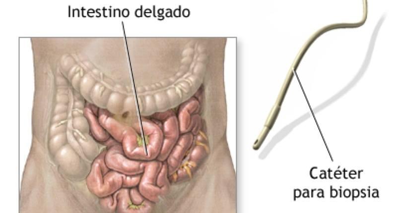 histologia celiaquia