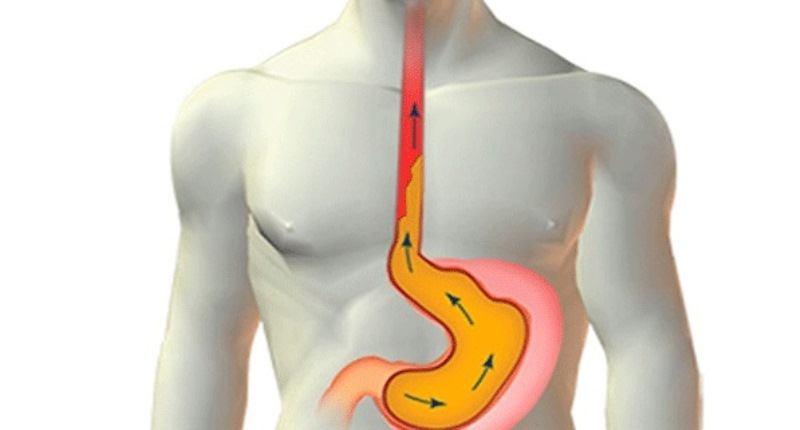 esofagitis de reflujo