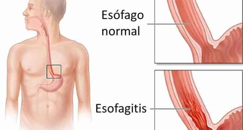 grados esofagitis