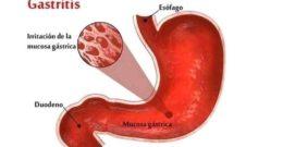 Gastritis: Efectos secundarios, tratamientos, síntomas