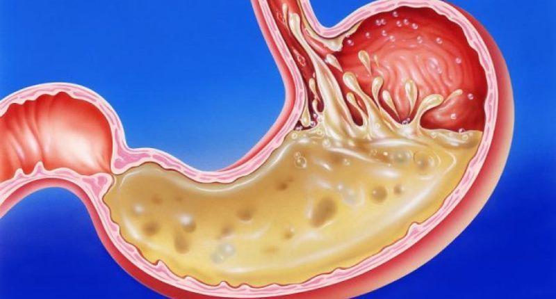 bloqueadores de histamina gastritis