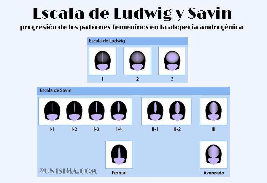 Alopecia androgénica femenina, escala ludwig y savin