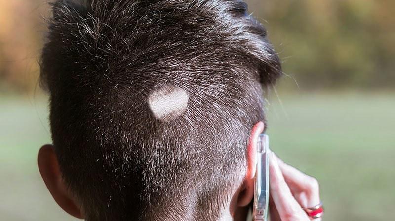 Alopecia areata en pelo corto