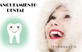 Blanqueamiento Dental: Tipos, 11 Consejos Importantes y Cuidados de Antes y Después