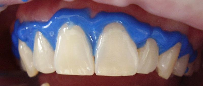 Láser en blanqueamiento dental