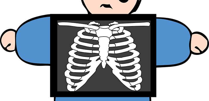 Calcio crecimiento en los huesos