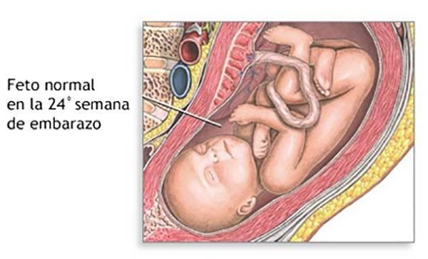 Embrión normal con 24 semanas de gestación