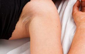 Estrías: Prevención, Tratamientos y Causas