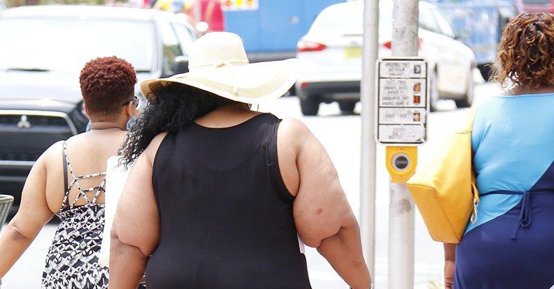 Obesidad factor de riesgo de la apnea obstructiva del sueño