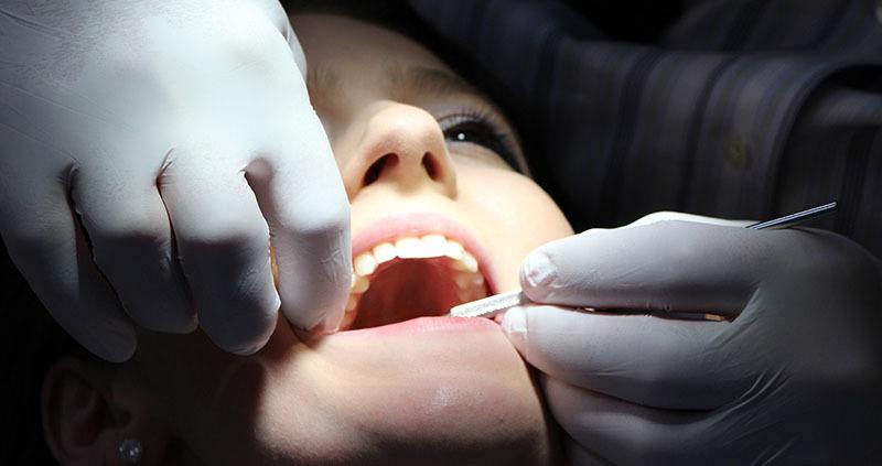 Limpieza bucal en dentista