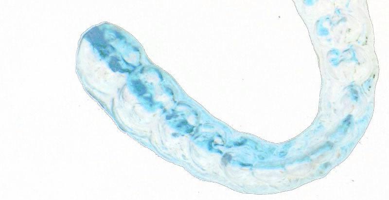 Molde dental personalizado para blanqueamiento dental